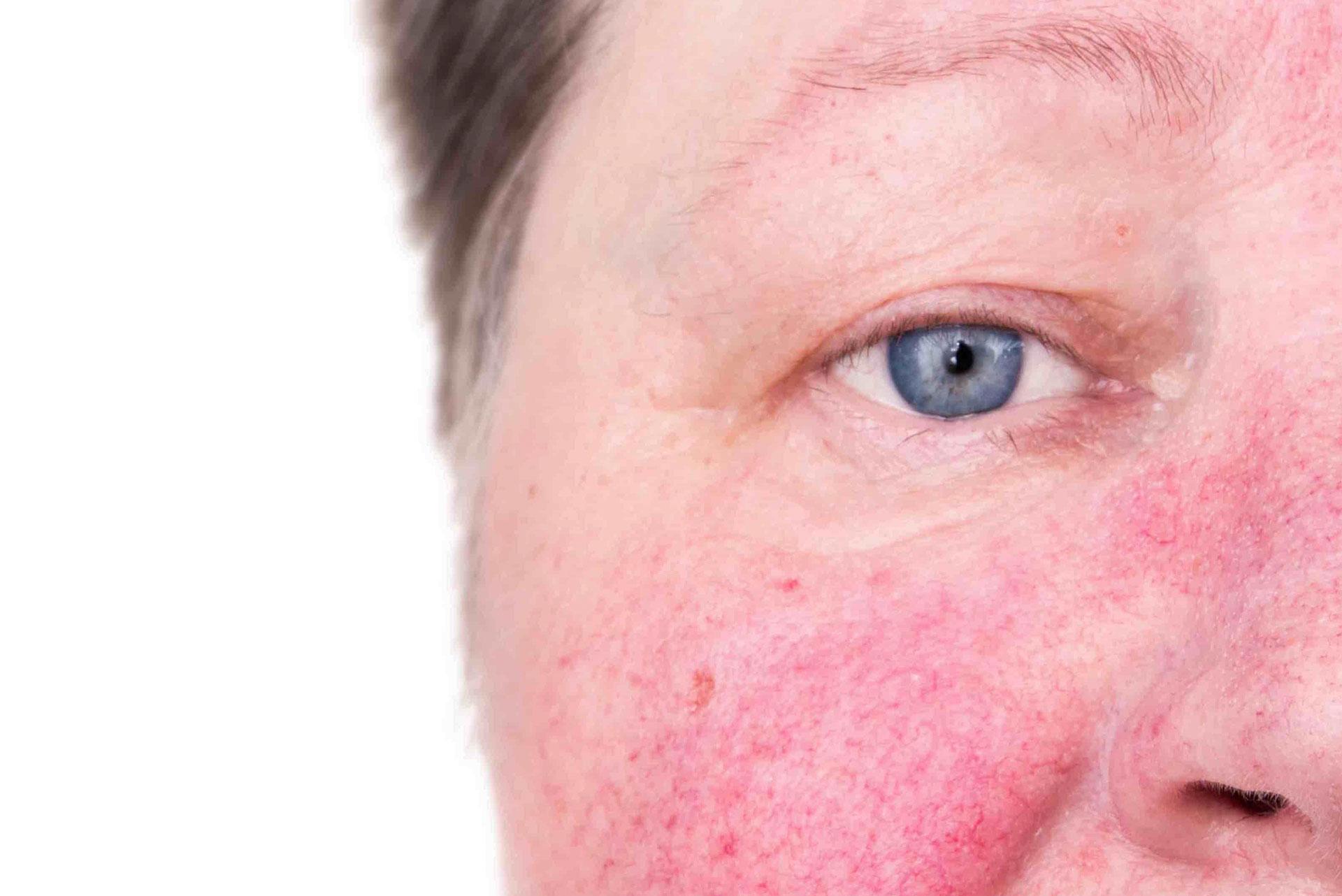 Rosácea: conheça as causas e tratamentos! - Innove Clinic